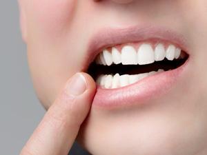 歯周病で失われる歯肉