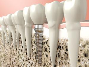 天然の歯と遜色のないインプラント