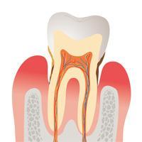 歯周病は早期発見が大切