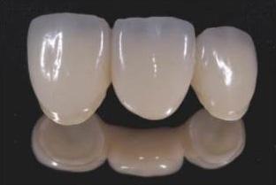 日本トップクラスの歯科技工士と連携